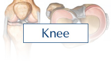 Knee Conditions Treated