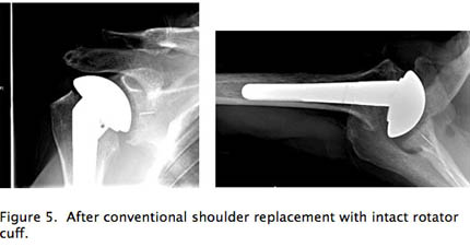 After conventional should replacement with intact rotator cuff